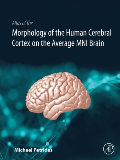 Afbeelding van Atlas of the Morphology of the Human Cerebral Cortex on the Average Mni Brain