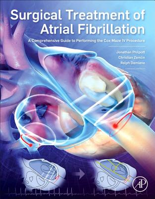 Afbeelding van Surgical Treatment of Atrial Fibrillation