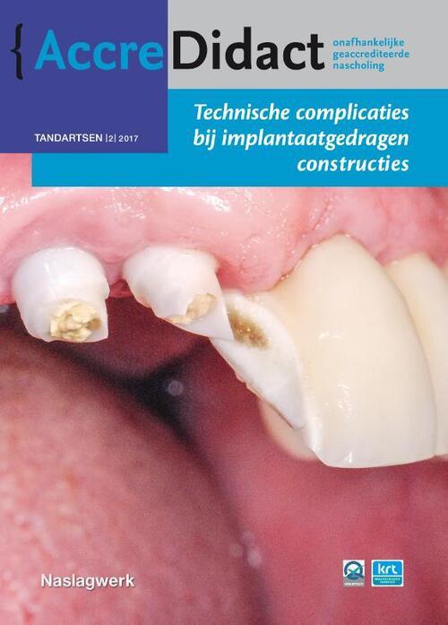 Afbeelding van Technische complicaties bij implantaatgedragen constructies