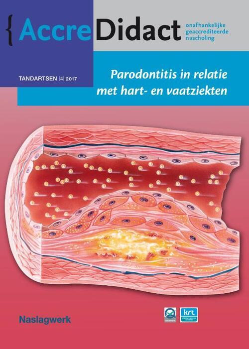 Afbeelding van Parodontitis in relatie met hart- en vaatziekten