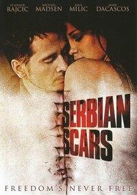 Serbian Scars-DVD