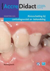 Risicoschatting bij cariësdiagnostiek en -behandeling gebaseerd op risicoschatting-Cor van Loveren, Gert Stel